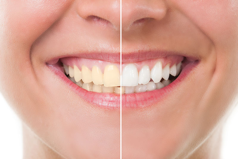 Teeth Whitening - Eternal Dental Care, Newark Dentist